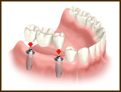 Dental Implants in Wellington