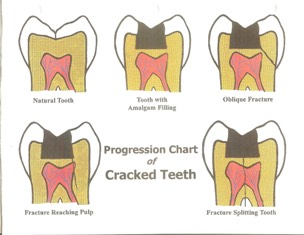 fractured-tooth-illustration