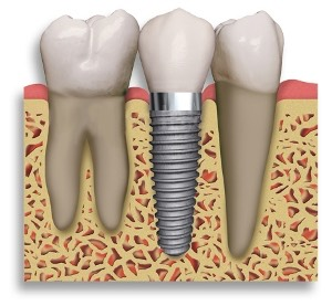Dental Implant Wellington