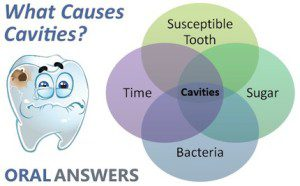 cause_of_cavities_tooth