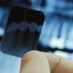 Safety of Dental Radiography