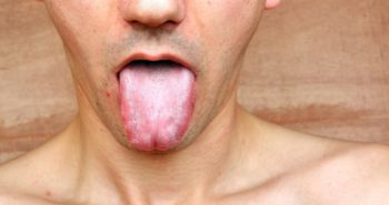 Do you take care of your tongue?