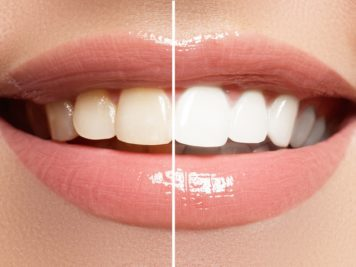 Yellow teeth can make a huge difference to your smile.