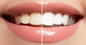 Can you get a whiter smile at home?