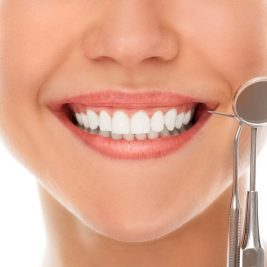 Dental veneers keep your smile looking fresh - but you still have to care for them!