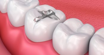 Are dental fillings really toxic?