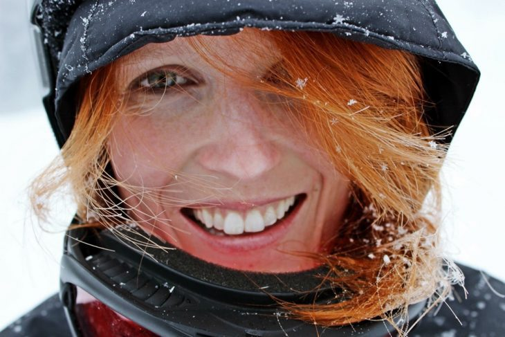 White teeth are achievable! Here's how.