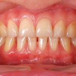 4 causes of gum disease worth knowing about