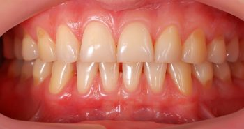 Gum disease has a range of causes that you should be aware of to aid prevention.