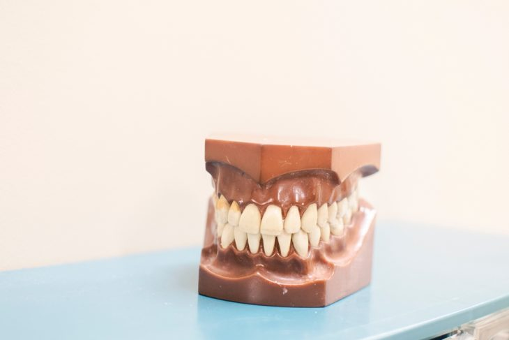 Know what to expect after a tooth extraction.