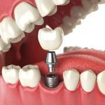 It's essential to protect your new dental implant.