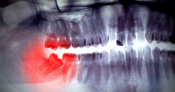 There's no fixed age that determines when to remove wisdom teeth, but leaving them in too long can lead to serious problems down the road.