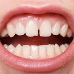 Options to close a diastema