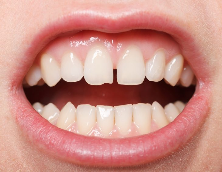 A diastema is a gap or space which develops between typically the two upper front teeth. Read on for options for treatment type and filling materials for closing a diastema.