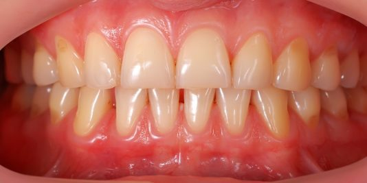 Gum disease is preventable and treatable so let's take a look at some of the risk factors you should look for when assessing your own health.