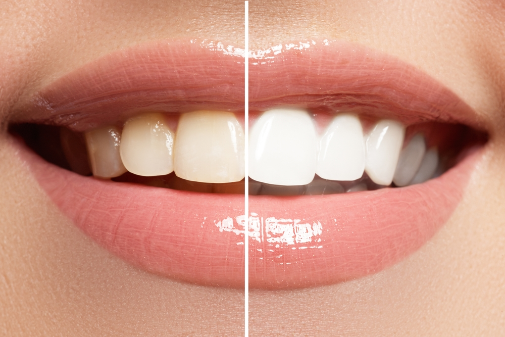 Veneers can make your teeth like nicer and whiter.