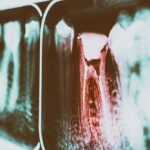 Root canals: Why they're nothing to be fearful about
