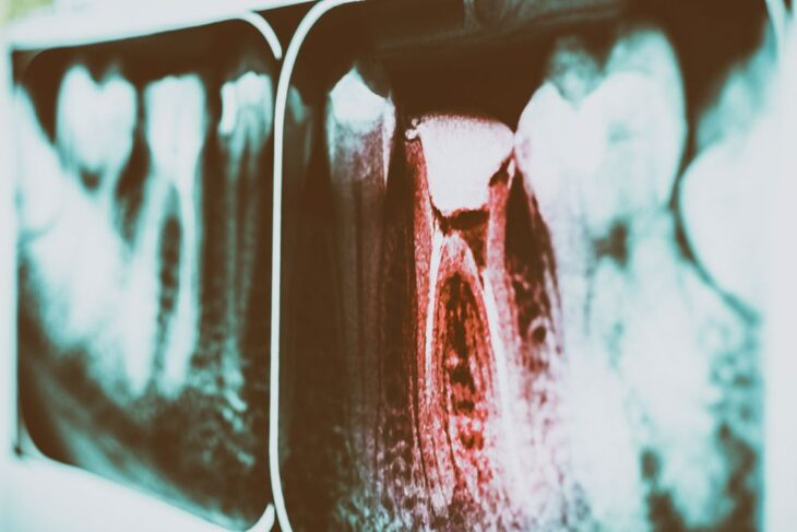 Tooth decay has to be addressed, and a root canal will.